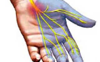 Особенности лечения синдрома запястного канала