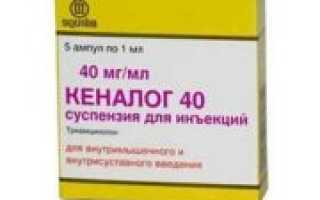 Какие заменители препарата Кеналог существуют?
