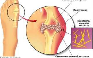 Как быстро снять острую боль при подагре во время приступа?
