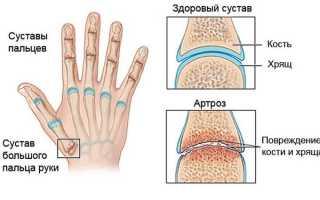 Каковы причины артроза пальцев рук и как его лечить?