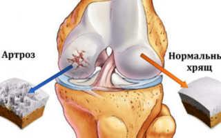 Симптомы и лечение бурсита голеностопного сустава