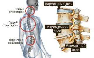 К какому врачу обращаться при шейном остеохондрозе?
