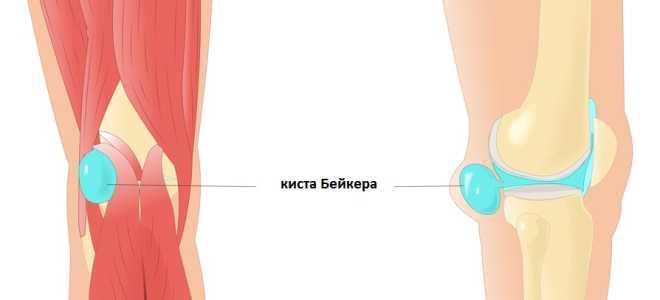 Выполнение упражнений для коленей при кисте Бейкера