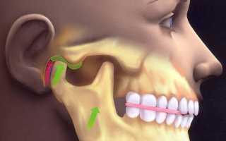 Артрит височно-нижнечелюстного сустава: симптомы и лечение