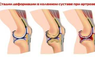 Использование холода в целях лечения суставов