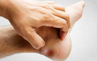 Лечение остеофитов пяточных костей