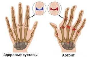 Польза фолиевой кислоты при лечении артрита