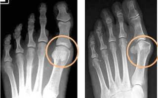 Как лечить остеоартроз суставов стопы?