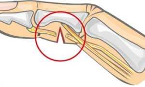 Что делать при разрыве сухожилия на пальце руки?
