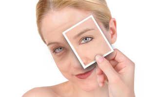Синяк-OFF — эффективное средство против гематом