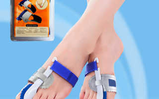 Применение фиксатора Ortofix Gess для большого пальца ноги