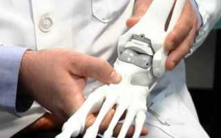 Проведение операции по замене голеностопного сустава