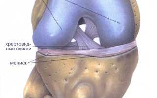 Что делать при воспалении мениска коленного сустава?