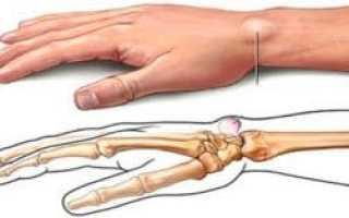 Как избавиться от костной мозоли после перелома?
