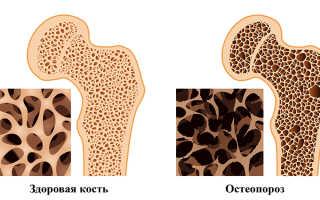 К какому врачу обращаться при остеопорозе костей?