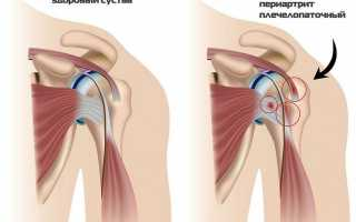 Диагностика и лечение периартрита плечевого сустава