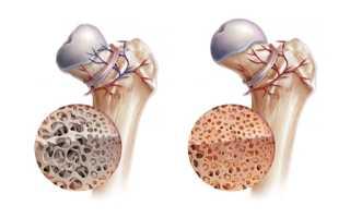 Что такое остеонекроз и как его нужно лечить?