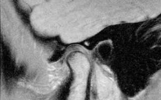 Как проводят МРТ височно-нижнечелюстного сустава