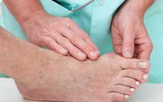 Лечение медикаментами и диета при подагре в период обострения