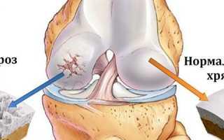 Деформирующий артроз коленного сустава 1 степени