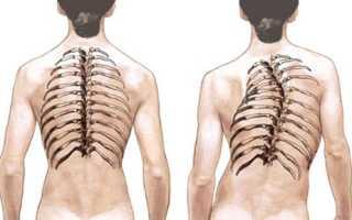 Какие методы физиотерапии используются при сколиозе?