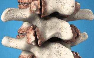 Лечение остеофитов шейного и поясничного отдела позвоночника