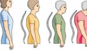 Эффективное лечение остеопороза народными методами