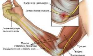 Упражнения при лечении эпикондилита локтевого сустава