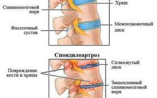 Выполнение гимнастики при грудном спондилоартрозе