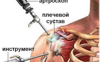 Проведение артроскопии плечевого сустава и восстановление после операции