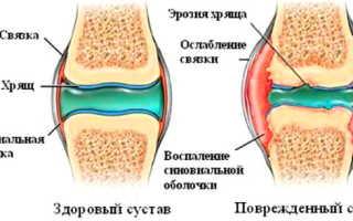 Протез ВискоПлюс для восстановления суставов