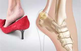 Причины боли в пятке во время ходьбы и ее лечение
