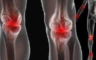 Возможные причины артропатии, ее симптоматика и лечение