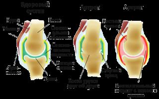 Домашнее лечение воспаления в коленном суставе