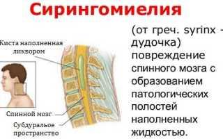Основные признаки сирингомиелии и ее лечение