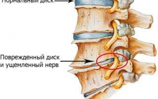Проявление кашля при грудном и шейном остеохондрозе