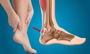 Особенности лечения тендинита ахиллова сухожилия