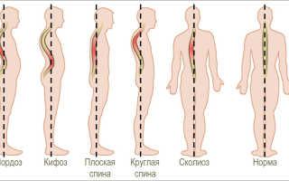 Признаки поясничного и шейного гиперлордоза