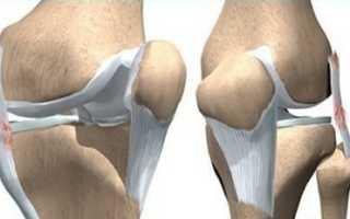 Как проявляется дисторсия связок коленного сустава?