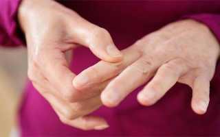 Как устранить боль в суставе большого пальца на руке?