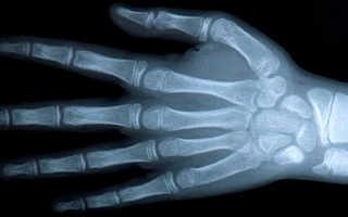Проведение рентгена кисти руки и результаты обследования