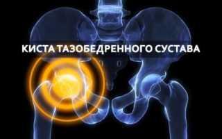 Признаки и лечение кисты тазобедренного сустава