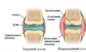 3 действенных мази для лечения синовита коленного сустава