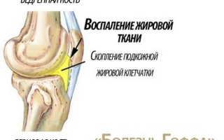 Признаки болезни Гоффа коленного сустава и способы ее лечения