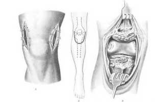 Проведение артротомии суставов и возможные осложнения