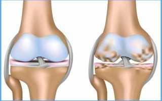 Способы лечения остеохондроза коленного сустава
