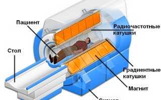 Чем отличается КТ от МРТ позвоночника и что лучше сделать?