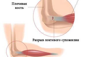 Как определить и лечить растяжение локтевого сустава