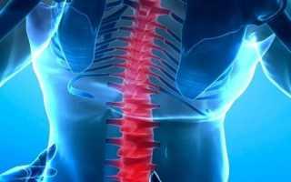Что такое миелит спинного мозга и как его лечить?