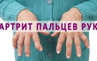 Особенности лечения воспаления кистевого сустава рук